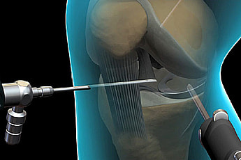Arthroscopy & Ligament Injuries